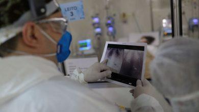 Foto de Saúde atualiza números da pandemia: Brasil tem 363 novos óbitos